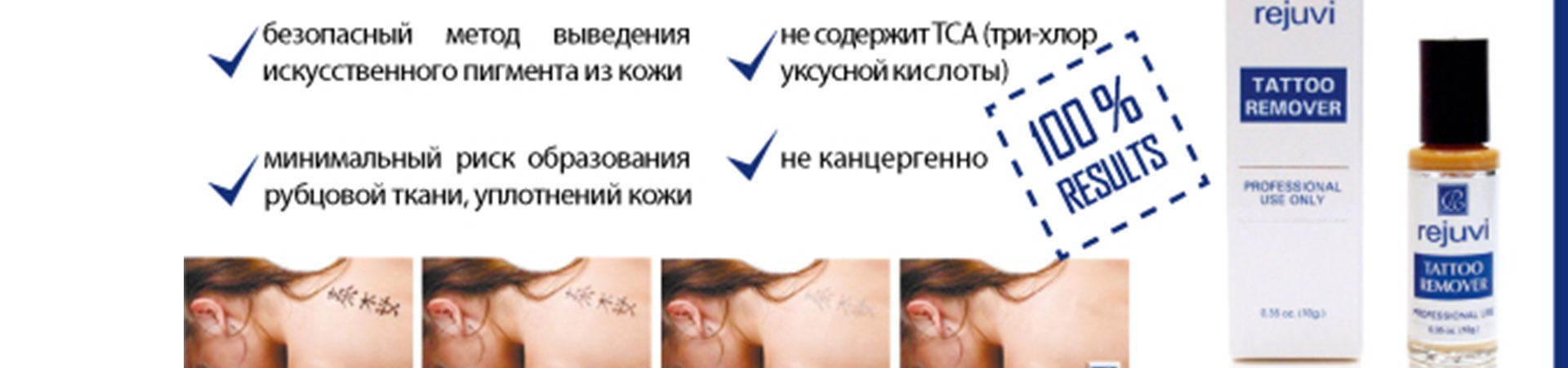 Tattoo Remover