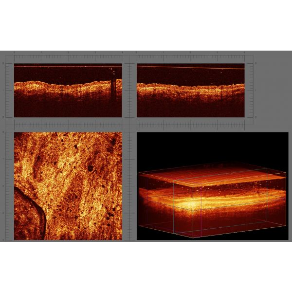 Системма визуализации структуры биотканей